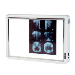 NEGATOSCOPE 2 PLAGES LuxeAuluga Services – Matériel Médical