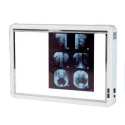 NEGATOSCOPE 2 PLAGES avec Variateur d'intensiteAuluga Services – Matériel Médical