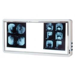 NEGATOSCOPE 4 PLAGES avec Variateur d'intensitéAuluga Services – Matériel Médical